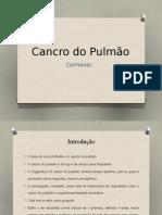 Cancro Do Pulmão Carolina