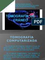 diapositivasdetomografiadecraneo-131117112629-phpapp02.pptx