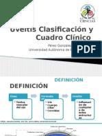 Uveitis clasificación y cuadro clínico