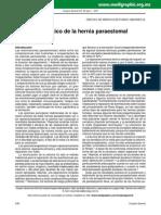 Manejo Quirurgico Hernia Paraestomal