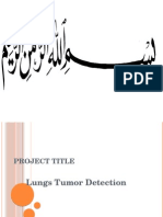 Lung Tumor Detection