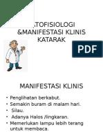 Patofisiologi &Manifestasi Klinis Katarak