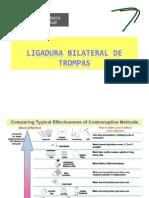 LIGADURA TROMPAS
