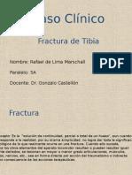 Caso Clínico Fractura Tibia