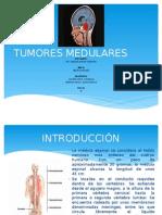TUMORES MEDULARES DIAPOS