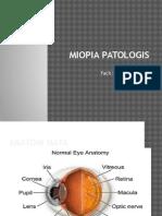 Miopia Patologis