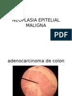 Neoplasia Epitelial Maligna