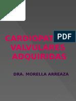 CARDIOPATIAS VALVULARES ADQUIRIDAS