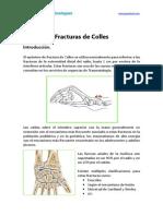 Fractura Muñeca