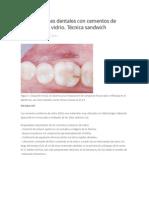 Restauraciones Dentales Con Cementos de Ionómero de Vidrio