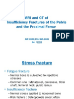 MRI and CT insufficiency fractures of pelvis and proximal femur.ppt