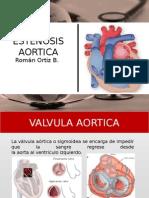 Estenosis Aortica