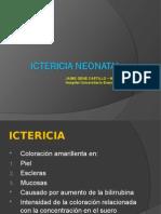 ICTERICIA NEONATAL.ppt