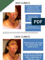CaCaso clinico enfisema