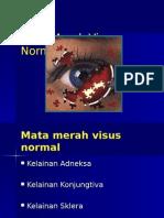 Mata Merah Visus Normal 2104