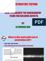 How to Interprete Radiographs