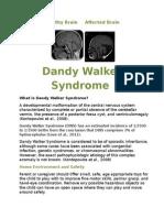 abbey-dandy walker syndrome
