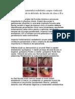 Influienta tratamentului endodontic