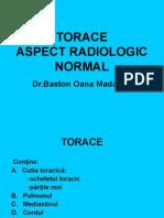 Torace-Aspect Rx Normal