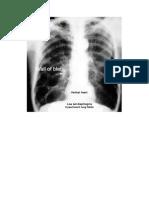 Gambaran Radiologis Pada Emfisema