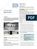 50.Missing Upper Lateral Incisors