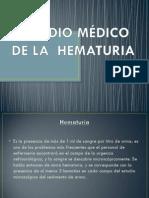 CONCEPTOS DE HEMATURIA