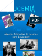 Algumas Fotografias de Pessoas Com Leucemia!!