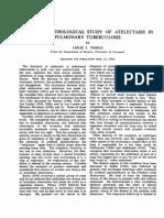 Atelectasis Pulmory Tubercolosis