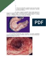 Doença de Crohn e Tabela Comparativa
