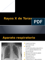 Rayos X de Torax