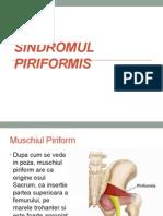 Sindromul Piriformis