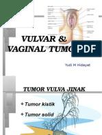 13. Vulvar and Vaginal Tumor#6