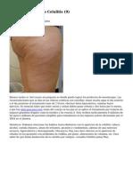 Article   Tratamiento Celulitis (9)