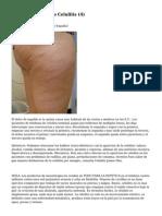 Article   Tratamiento Celulitis (4)