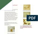 Gambar Mikroskopis Kristal Osazon