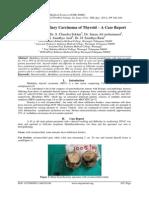 Sporadic Medullary Carcinoma of Thyroid – A Case Report