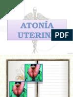 ATONIA UTERINA.pptx