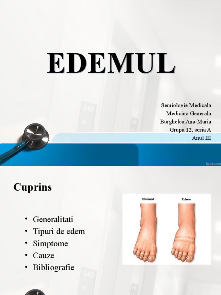 exerciții pentru edemul piciorului în varicoză