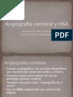 Angiografia Cerebral y HSA (3)