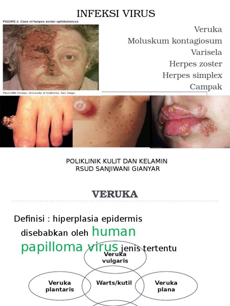 papilloma virus herpes zoster cum să retrag papilomele pe față