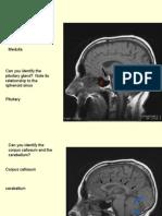 396 166092 Cavernous Sinus Anatomy