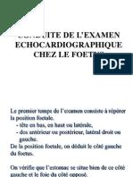 Conduite de l'examen échocardiographie chez le foetus