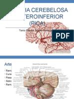 Arteria Cerebelosa Posterio Inferior