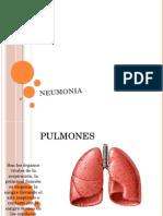 Presentacion Neumonia
