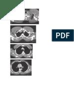 Anatomía Tomografica Del Tórax