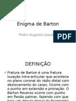 Enigma de Barton