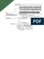 Clasificarea Tulburărilor de Ritm Cardiac