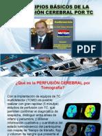 Perfusion Cerebral Cascavel