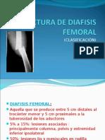 40449836 Fractura de Diafisis Femoral