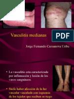 Vasculitis de Vasos Medianos_Jorge Fernando Cassanova